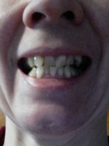 Before aligners
